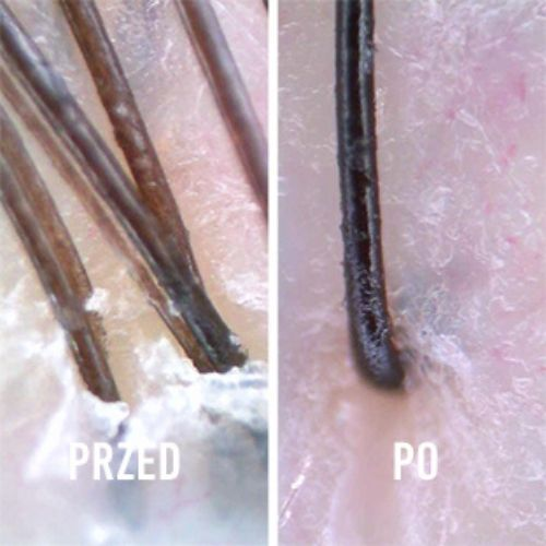 stosowanie peelingu kerastase, peeling kerastase efekty